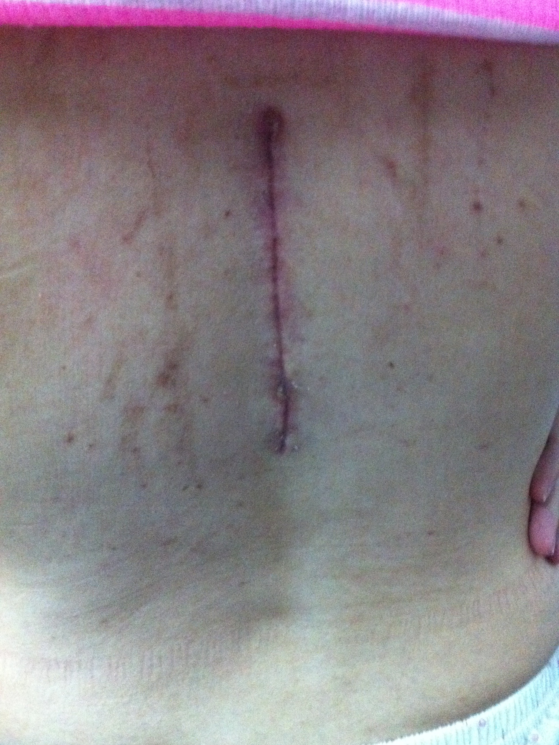 The scar that the operation left